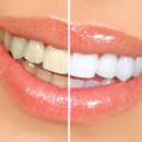 Natural Way To Whiten Teeth Between Visits